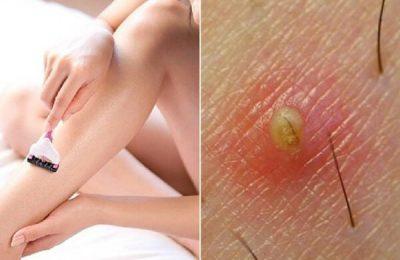 kem trị viêm lỗ chân lông
